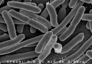 Escherichia coli, a Gram-negative bacterium widely studied in the lab as a model organism and also found in cases of food poisoning